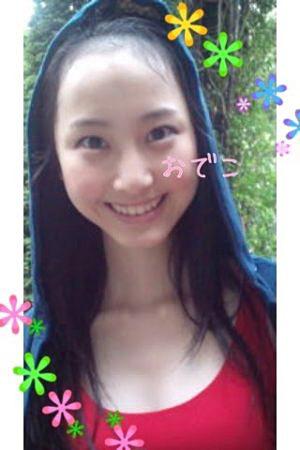 松井玲奈の薄毛の画像1
