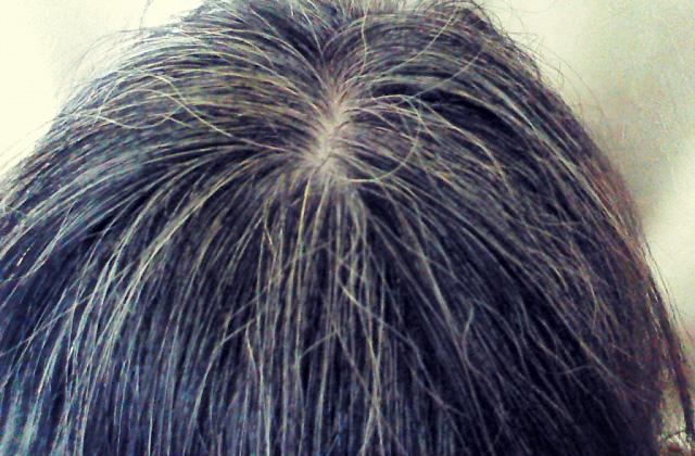 女性が悩む白髪の原因とオススメの改善方法・治し方は?