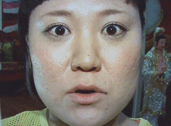 肌が汚い女性芸能人⑧「バービー」〜クレーター肌も400万かけて少しは綺麗に?〜画像1