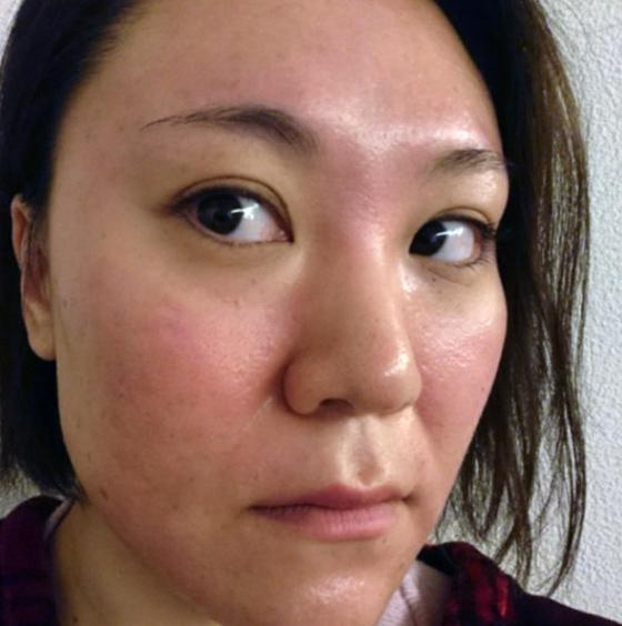 肌が汚い女性芸能人⑧「バービー」〜クレーター肌も400万かけて少しは綺麗に?〜画像2