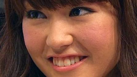 肌が汚い女性芸能人①「桐谷美玲」〜痩せすぎな女性は肌荒れしやすい!?〜画像2