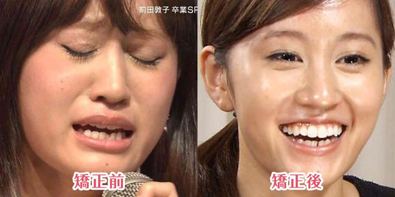 3ヶ月間矯正装置をつけていた!下だけ歯並びが綺麗になった「前田敦子」