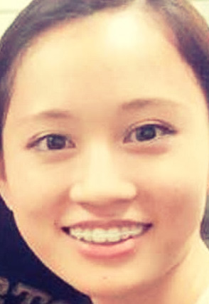 歯の矯正装置をつけている前田敦子の画像