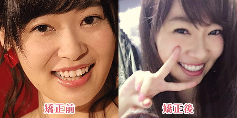 テレビで歯の矯正治療を公言!裏側矯正やゴムかけ治療をした「指原莉乃」
